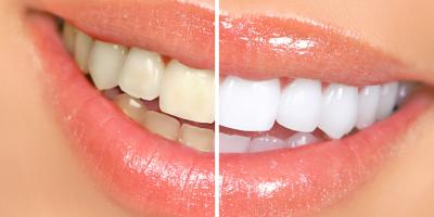 Teeth Whitening 101: Tips to Ensure Your Early Success, Heath, Ohio