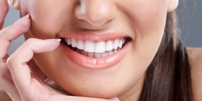 3 Reasons to Consider Teeth Whitening, ,