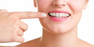 More Than a Straight Smile: 3 Unexpected Benefits of Braces, Perry, Georgia