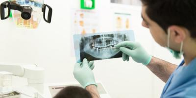 What You Need to Know About the Tooth Extraction Process, Martinsburg, West Virginia