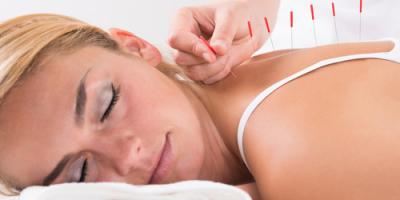 The Top 4 FAQs About Trigger Point Acupuncture, North Hempstead, New York