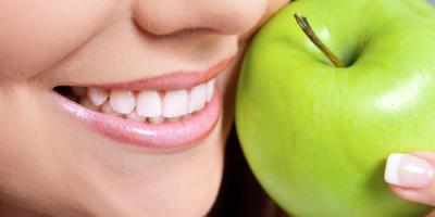 A Family Dentist Answers the Top Questions About Veneers, Anchorage, Alaska