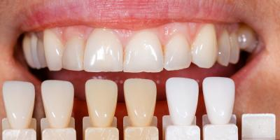 Guide to Dental Veneers, Waterford, Connecticut