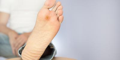 What Should I Know About Wart Removal?, Wolcott, Connecticut