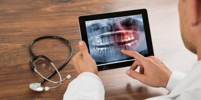 Your Comprehensive Guide to Wisdom Teeth, Collierville, Tennessee
