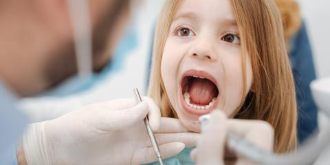 What You Need to Know About Sealants as Part of Your Child's Dental Care, Anchorage, Alaska