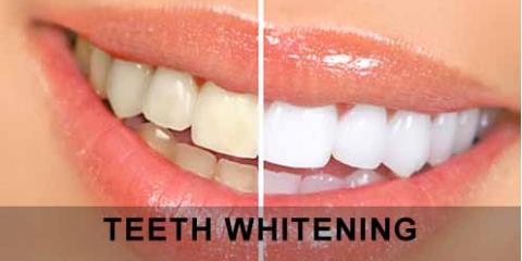 MGO Dental's List of 5 Ways to Achieve a Much Whiter Smile, Chino Hills, California
