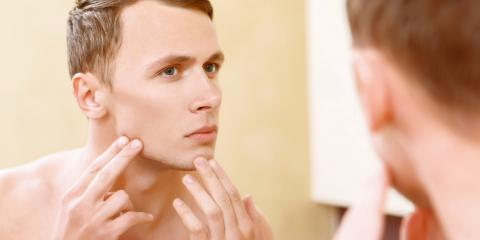 What Can I Expect From an Acne Facial Treatment?, Manhattan, New York