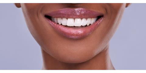 In Office Whitening Procedure, Anchorage, Alaska