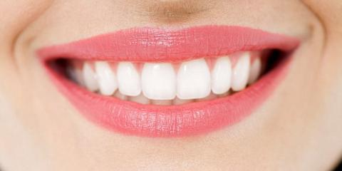 Teeth Whitening Special, Lexington-Fayette Central, Kentucky