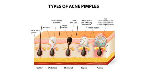 A Dermatologist Explains How to Distinguish Between Blackheads & Sebaceous Filaments, Honolulu, Hawaii