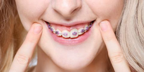 The 3 Most Common Questions About Braces, Fairfield, Ohio