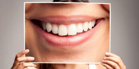 Dentists Highlight 3 Key Benefits of Improving Your Smile  , Hastings, Nebraska