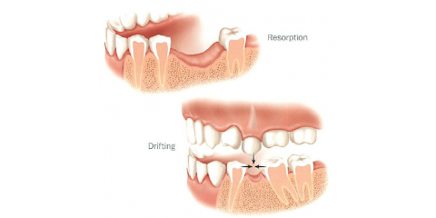 Loss of a back tooth? , Manhattan, New York