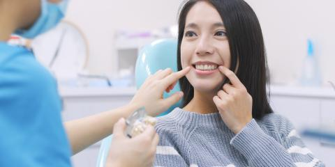 4 FAQ About Teeth Whitening , Gates, New York