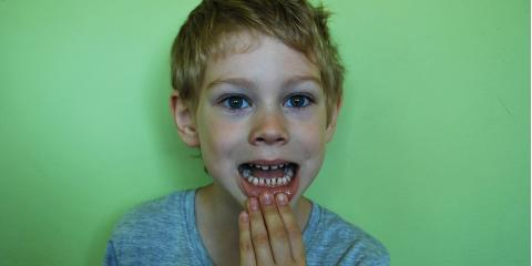 Pearl City's Best Pediatric Dentists on Protecting Your Kids From Cavities, Ewa, Hawaii