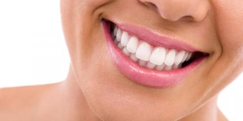 3 Powerful Benefits of Non-Invasive Dental Implants, Anchorage, Alaska
