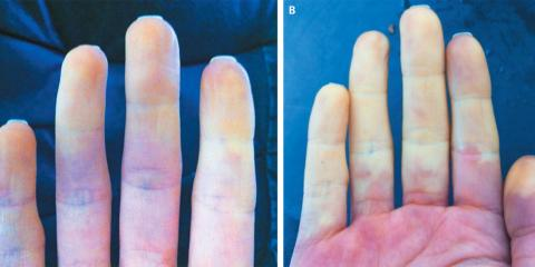 Do you suffer from Raynaud's?, Hamden, Connecticut