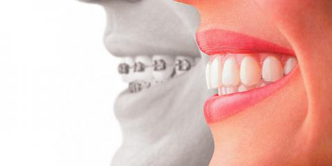 3 Differences Between Invisalign And Traditional Braces, Honolulu, Hawaii