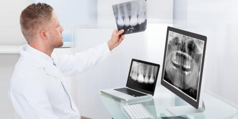 Everything You Need to Know About Dental X-Rays, Oconto Falls, Wisconsin