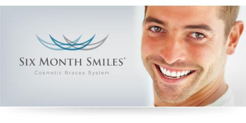 Monroe Dentist Offers Two Kinds Of Clear Braces For Straight Teeth In Less Time, Monroe, New York