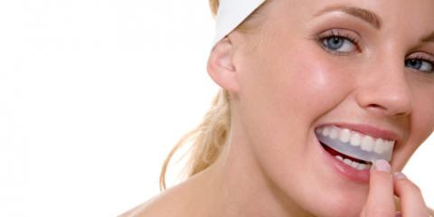 Common Misconceptions About Teeth Whitening, San Fernando Valley, California