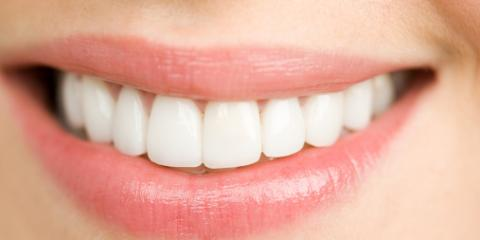 3 Key Steps of a Professional Teeth Cleaning, San Fernando Valley, California