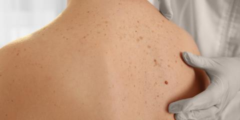 A Sugar Land Skin Doctor Explains Why You Need to Examine Your Moles , Sugar Land, Texas