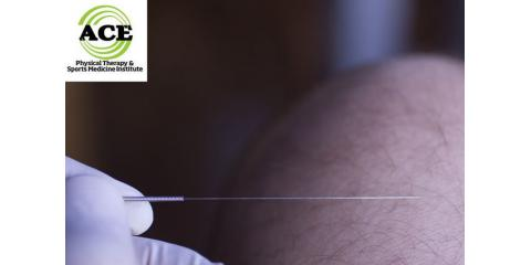 Dry Needling - Heals Faster! , Idylwood, Virginia