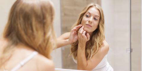 Different Types, Different Treatments: 3 Unique Acne Treatments, Asheboro, North Carolina