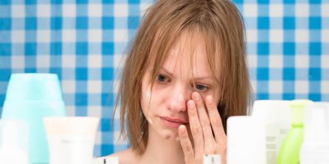 3 Signs You Should See a Dermatologist About Your Acne, Albemarle, North Carolina