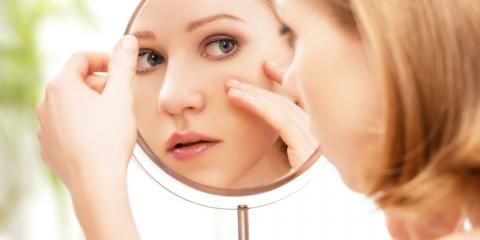 What Are Some Acne Treatment Options for Sensitive Skin?, High Point, North Carolina