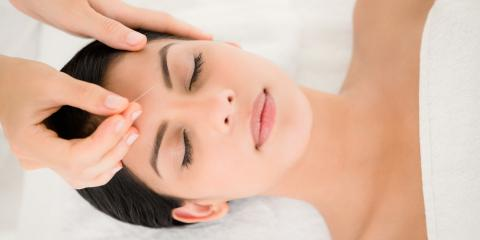 7 Rare But Normal Side Effects to Acupuncture, Covington, Kentucky