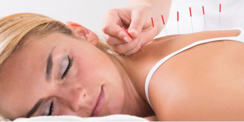 Discover How Acupuncture Helps Relieve Migraine Pain, Forest Park, Ohio