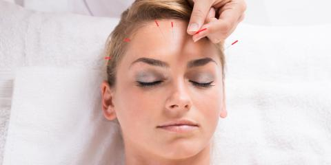 3 Common Questions About Your First Acupuncture Treatment, Covington, Kentucky