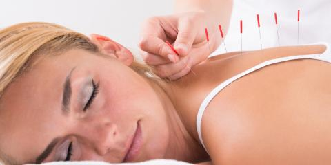 5 Myths About Acupuncture, Debunked, Denver, Colorado