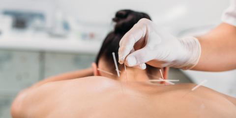 3 Benefits of Acupuncture, Kihei, Hawaii