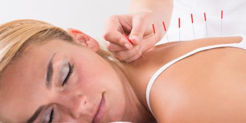 3 Health Benefits of Acupuncture, Montvale, New Jersey