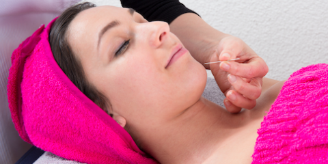 Acupuncture FAQs: The Essential Information You Need to Know, Manhattan, New York