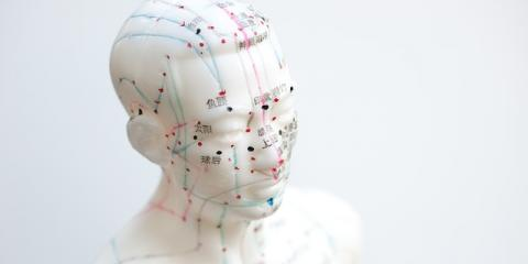 ​Treat Anxiety & Depression the Natural Way With Acupuncture , Manhattan, New York