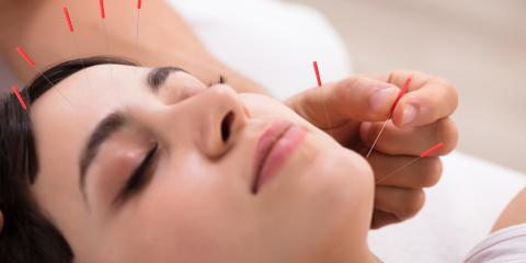 3 Benefits of Acupuncture for Pregnant Women, Nyack, New York