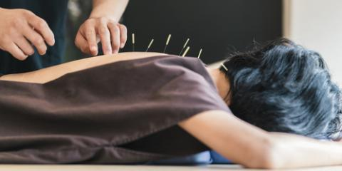 What to Expect From Your First Acupuncture Treatment, Reno Southeast, Nevada