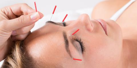 Turn to Acupuncture for Allergy Symptom Relief, Reno Southeast, Nevada