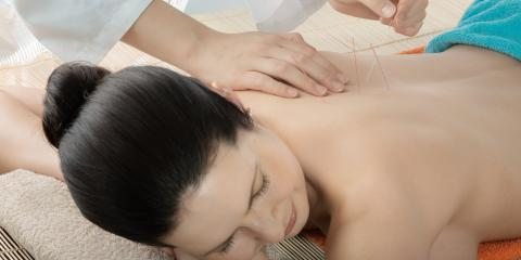 3 Benefits of Acupuncture for Back Pain, Sheffield, Ohio