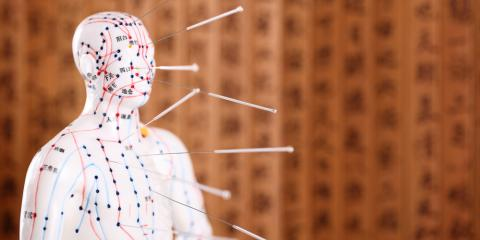 3 Amazing Benefits of Acupuncture Therapy, Nyack, New York