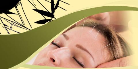 Empire Acupuncture, Acupuncture, Health and Beauty, Webster, New York