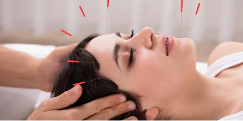 What to Know About Acupuncture Treatment for Migraines, Webster, New York