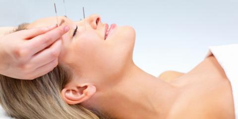 3 Ways Acupuncture Helps Treat Depression, Manhattan, New York