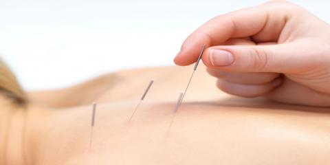 How Acupuncture Pain Management Can Ease PMS, Babylon, New York