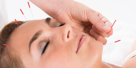 How Many Acupuncture Treatments Will I Need?, North Hempstead, New York